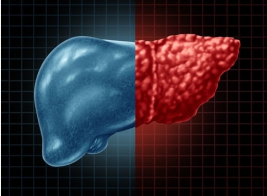 Health Tips For Fatty Liver Disease